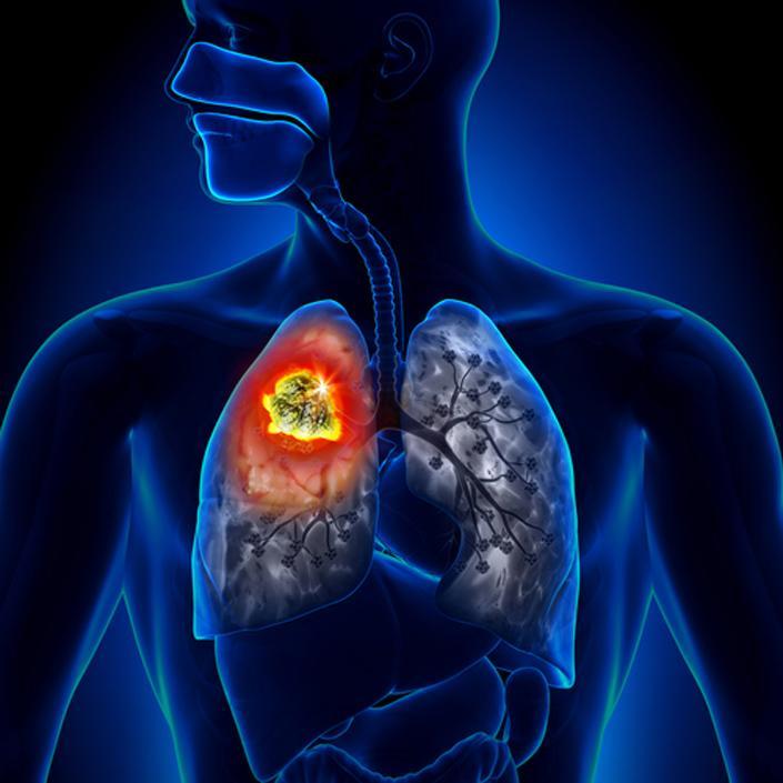 EU: Höchste Lungenkrebsraten in Ungarn und Griechenland post's picture