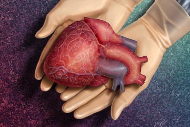 10% Mehr Organtransplantationen in Ungarn post's picture