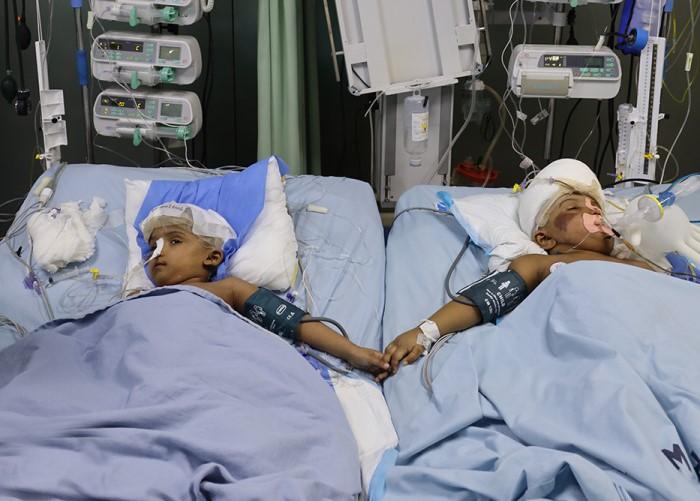 Einer der siamesischen Zwillinge wurde wieder operiert